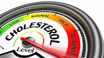Reprogramación del Mini Work Shop sobre Metabolismo Intracelular del Colesterol